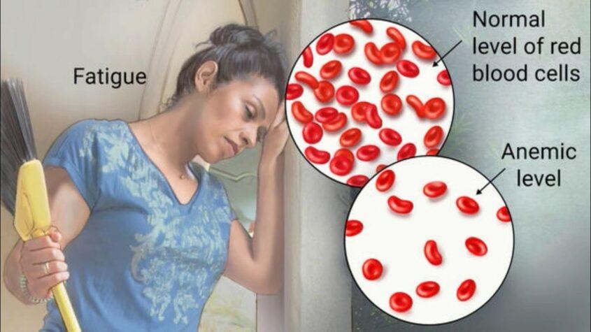 Anemia - B12